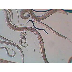 Anguila del vinagre